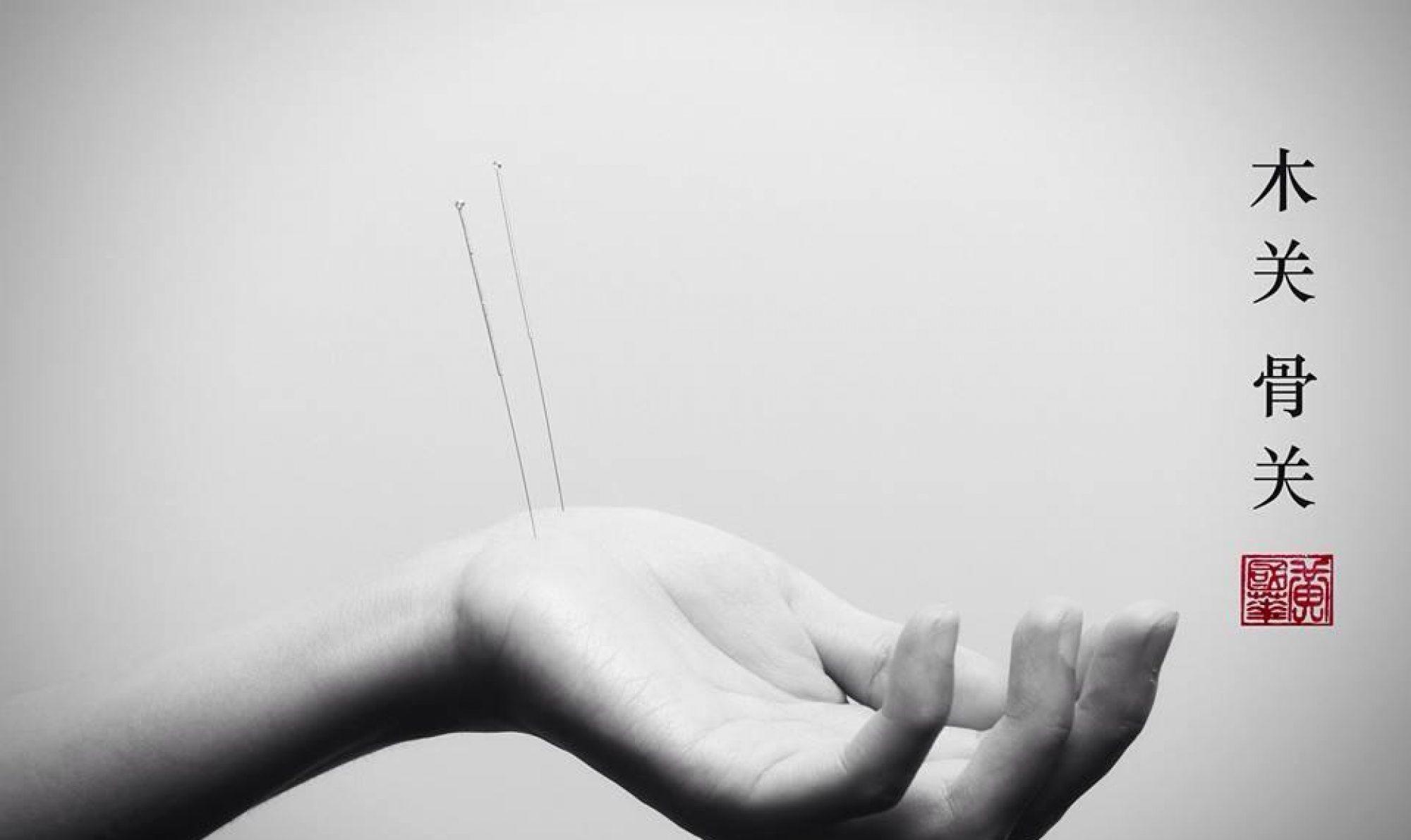 Bærum Akupunktur